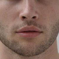 Rinoplastica uomo, perchè si rifanno il naso gli uomini?
