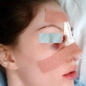 Quanto dura la depilazione laser? – Farmajet