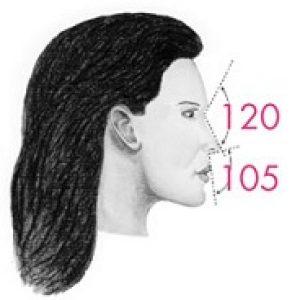 rinoplastica donna