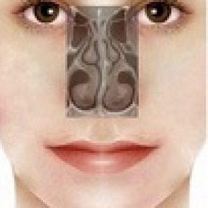 deviazione setto nasale