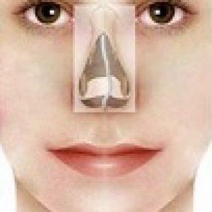 correzione setto nasale deviato