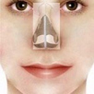 setto nasale corretto