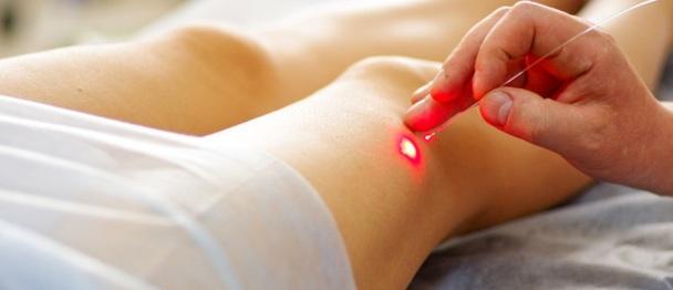terapia della luce per capillari rotti